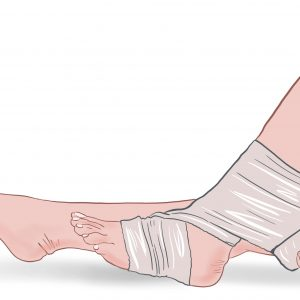 podiatrist sports injury ankle