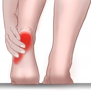 plantar heel pain treatment